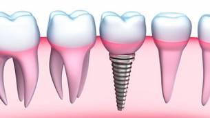 Implantate - Alternative zu herkömmlichem Zahnersatz
