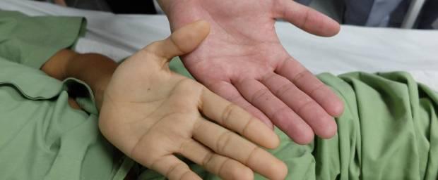 Von Gelbsucht gelb gefärbte Hand und normale Hand im Vergleich